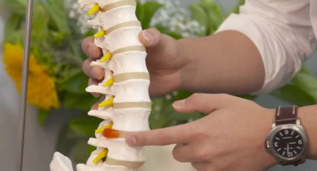 Spinal Condition Disc bulge