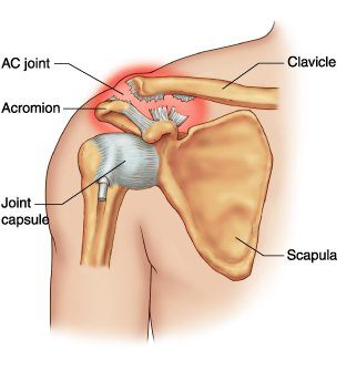 Acromio-Clavicular (AC) Joint Injuries