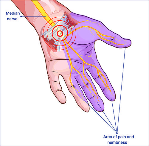New Video on Carpal and Cubital tunnel syndrome